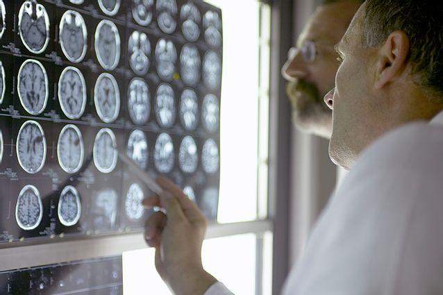 Aneurisma Cerebral Para Leigos