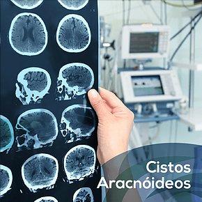 Cistos Aracnóides