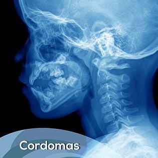 Cordomas