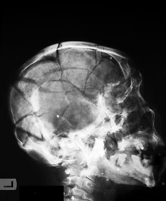 Fraturas cranianas
