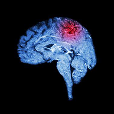 Hematomas cerebrais pós-traumáticos
