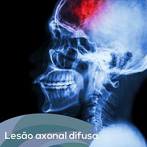 Lesão axonal difusa