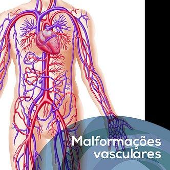 Malformações Vasculares