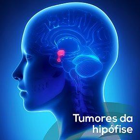 Tumores da Hipófise