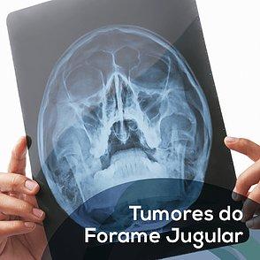 Tumores do Forame Jugular