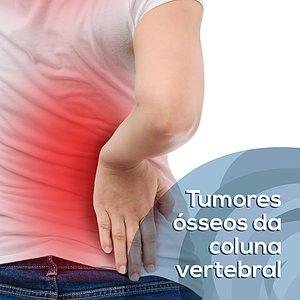 Tumores ósseos da coluna vertebral