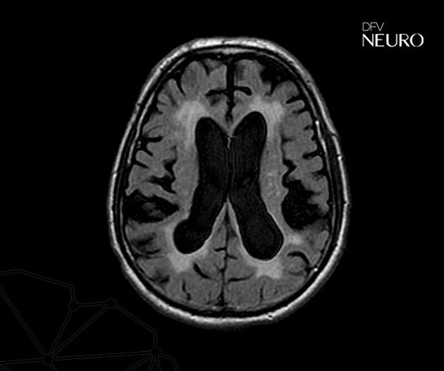 hidrocefalia de pressão normal HPN demência